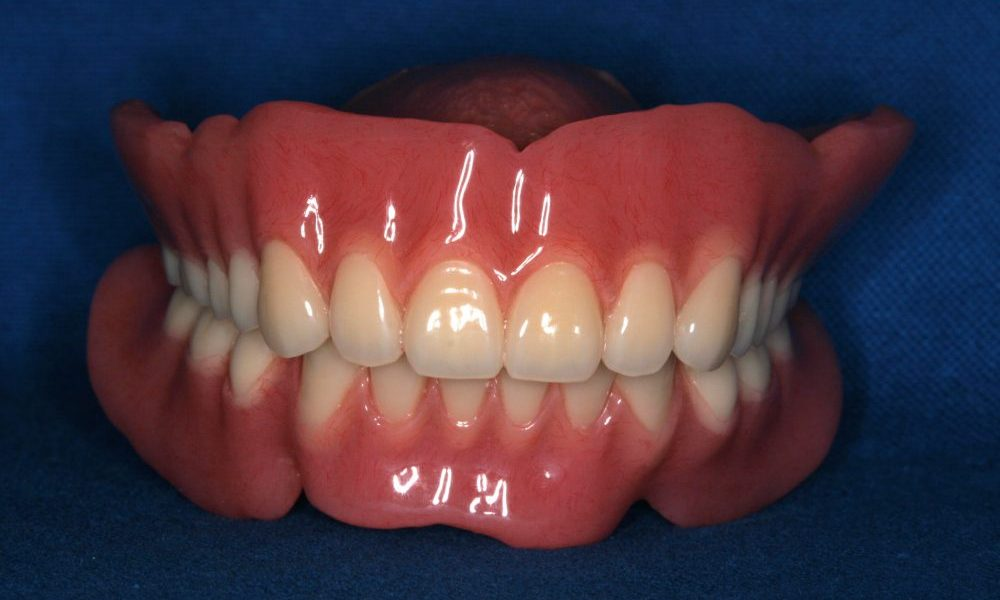 入れ歯|盛岡市のふじの歯科医院